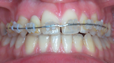traitement orthodontie paris 20